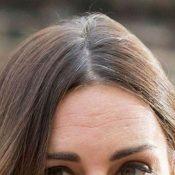 capelli-bianchi